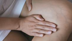 żylaki w ciąży